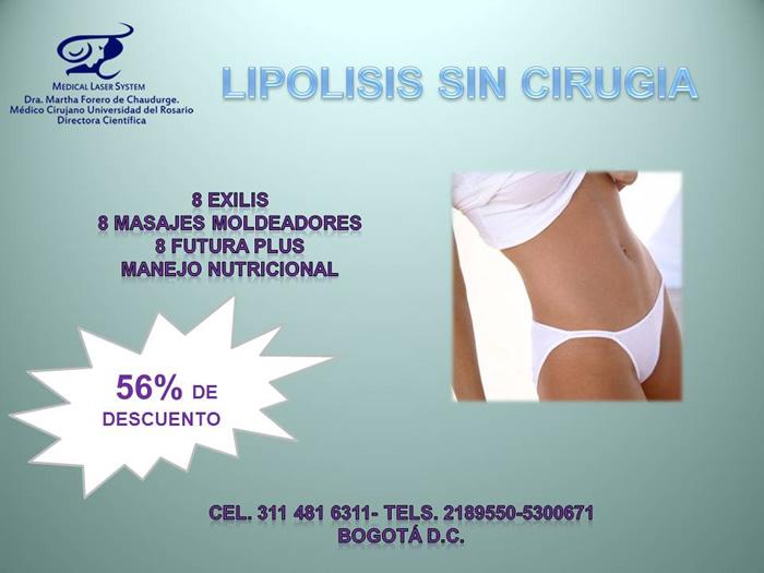 Lipólisis sin cirugía con Exilis Body: Oferta. Descuento.